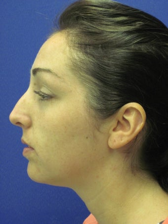 Rhinoplasty before 397022