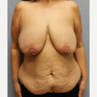 45-54 year old woman treated with Mommy Makeover before 3423931