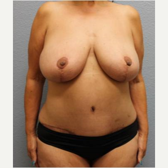 45-54 year old woman treated with Mommy Makeover after 3423931