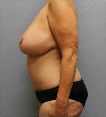 45-54 year old woman treated with Mommy Makeover 3423931