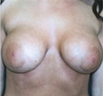 Breast Augmentation after 2006196