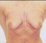 Breast Augmentation before 2006196