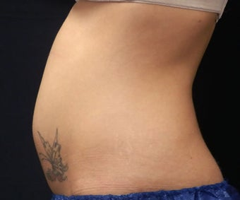 Coolsculpting 1143840