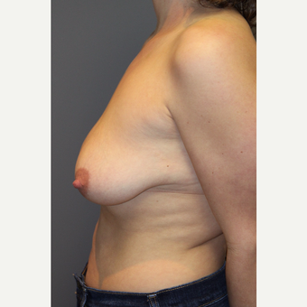 25-34 year old woman treated with Breast Lift with Implants before 3129118