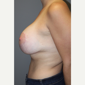 25-34 year old woman treated with Breast Lift with Implants after 3129118