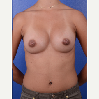 25-34 year old woman treated with Breast Augmentation after 3696134