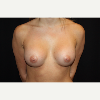 25-34 year old woman treated with Breast Augmentation after 3569342
