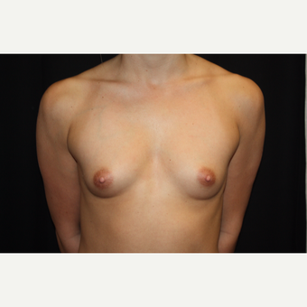 25-34 year old woman treated with Breast Augmentation before 3569342