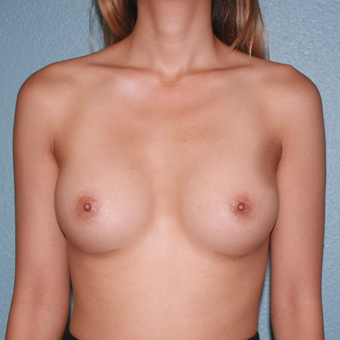 25-34 year old woman treated with Breast Augmentation after 3568175