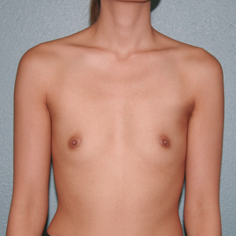 25-34 year old woman treated with Breast Augmentation before 3568175