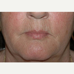 52 year old woman treated with Dermabrasion before 3710969