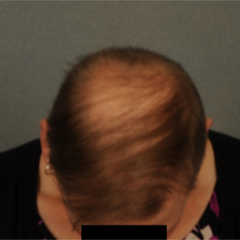 35-44 year old man treated with Hair Transplant after 3418508