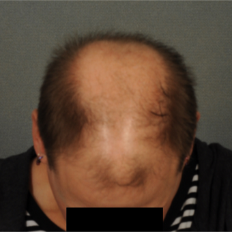 35-44 year old man treated with Hair Transplant before 3418508