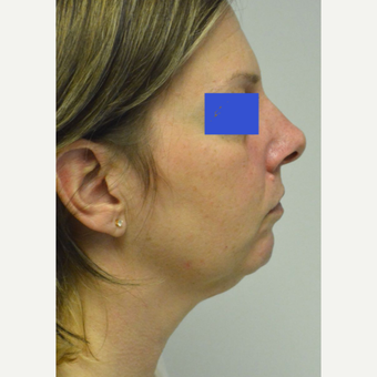 45-54 year old woman treated with Kybella before 3224979