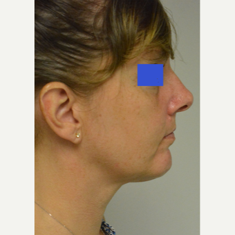 45-54 year old woman treated with Kybella after 3224979