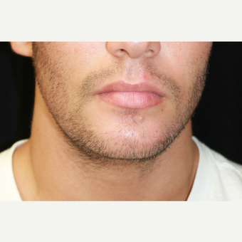 18-24 year old man treated with Chin Implant and Jaw angle implants before 3741951