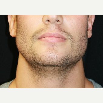 18-24 year old man treated with Chin Implant and Jaw angle implants after 3741951
