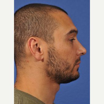 25-34 year old man treated with Rhinoplasty after 3237527