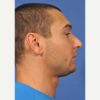 25-34 year old man treated with Rhinoplasty before 3237527