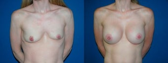 39 year old woman treated with Breast Augmentation before 2990418