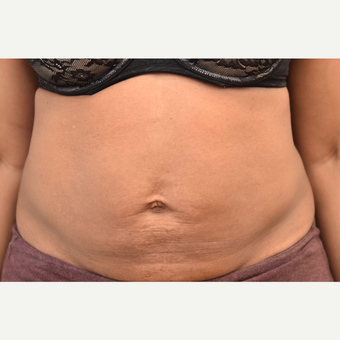 40 year old woman treated with Liposuction after 3748561