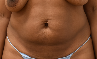 40 year old woman treated with Liposuction before 3748561