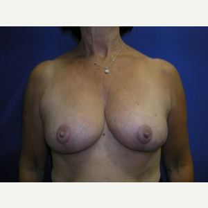 Breast Lift after 3055065