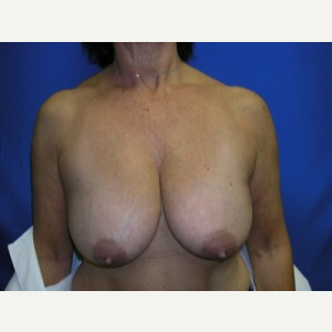 Breast Lift before 3055065