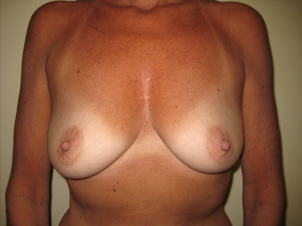Breast Augmentation before 1393932