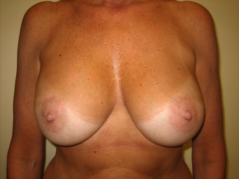 Breast Augmentation after 1393932