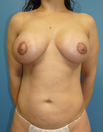 Breast and Body Sculpting