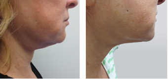 Female Ultherapy for Chin and Neck