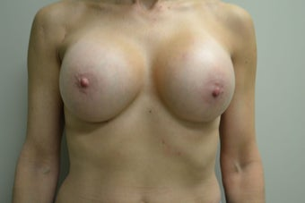 54 Year Old Female Breast Augmentation after 1455537