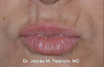 Lip Reconstruction 919804