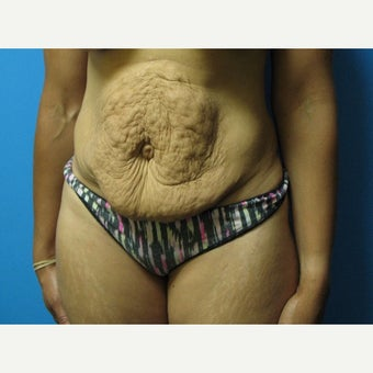 35-44 year old woman treated with Tummy Tuck before 2232847