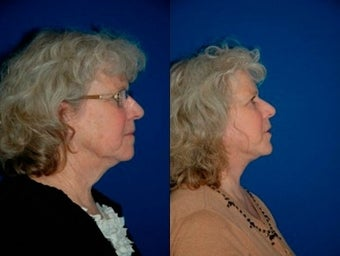 58 year old woman treated with Facelift before 3004837