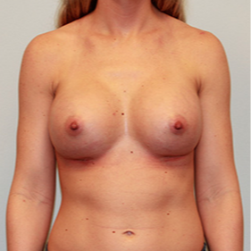 Breast Implants after 2081037
