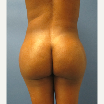 25-34 year old woman treated with Brazilian Butt Lift after 3691017