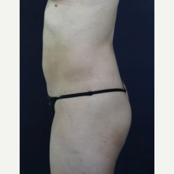 25-34 year old woman treated with Brazilian Butt Lift before 3820318