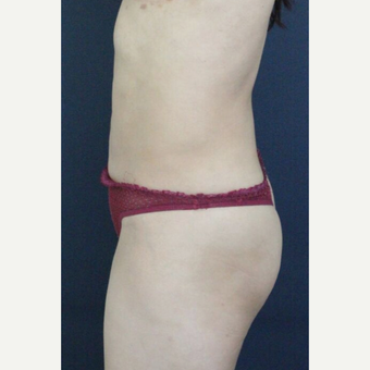 25-34 year old woman treated with Brazilian Butt Lift after 3820318