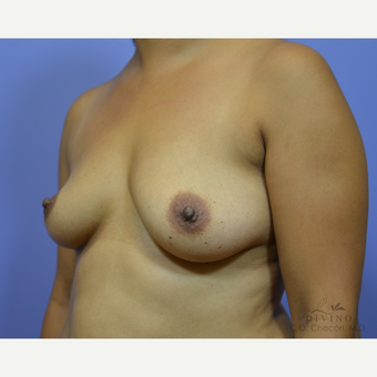 25-34 year old woman treated with Breast Augmentation before 3419084