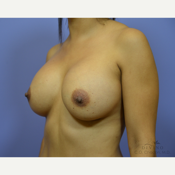 25-34 year old woman treated with Breast Augmentation after 3419084