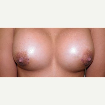 18-24 year old woman treated with Breast Augmentation after 1832165