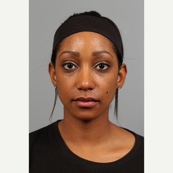25-34 year old woman treated with African American Rhinoplasty after 3710100