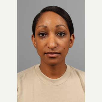 25-34 year old woman treated with African American Rhinoplasty before 3710100