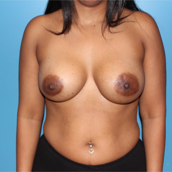 35-44 year old woman treated with Breast Implant Revision after 3806163
