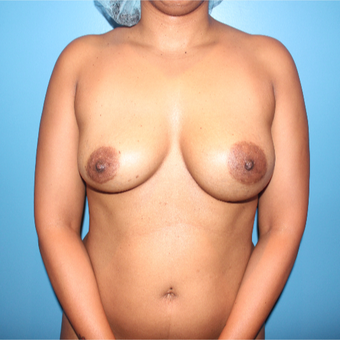 35-44 year old woman treated with Breast Implant Revision before 3806163