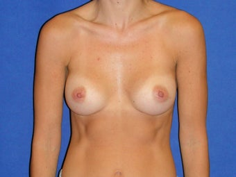 Breast Augmentation after 1189561