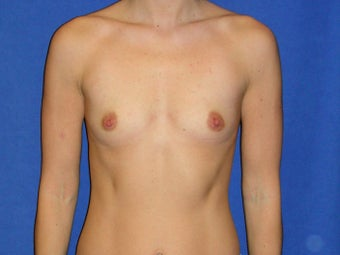 Breast Augmentation before 1189561