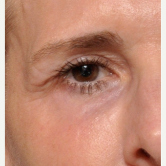 Say Goodbye to Those Fine Lines Around the Eyes after 3793614